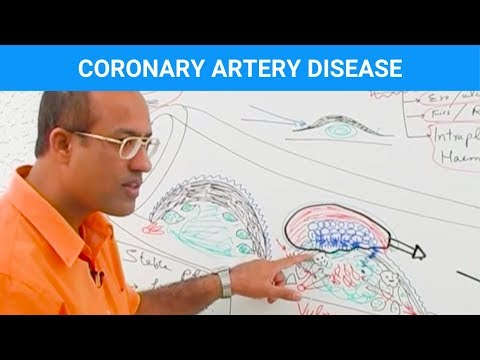 Coronary Artery Disease - Ischemic Heart Disease - Angina thumbnail