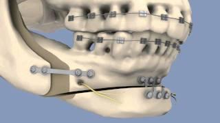 BSSO & Osseous Genioplasty