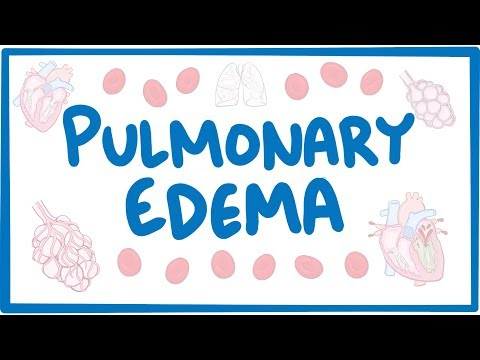 Pulmonary Edema - causes. symptoms. diagnosis. treatment. pathology