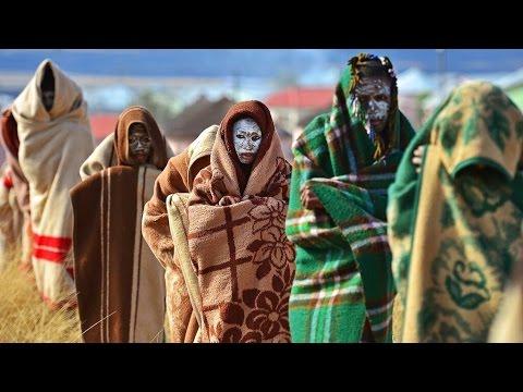 Penis Transplant For African Circumcision Victim