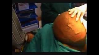 Giant lipoma (tumor) weighing 40 Lb operated under LA by Dr. J K Lakhani .