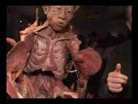 foto de cadaver humano: