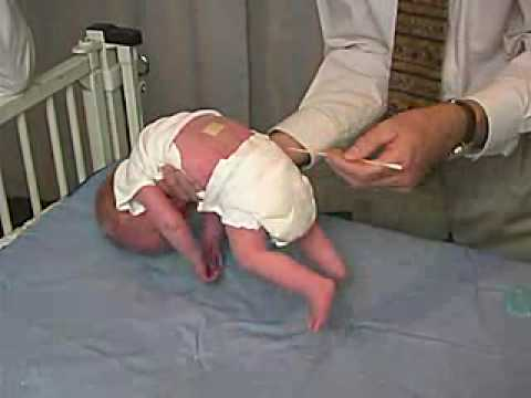 Primitive Reflexes - Galant The baby has a normal Galant or trunk