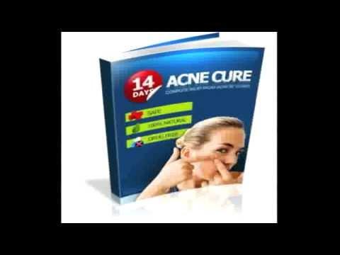 14 Days Acne Cure Review