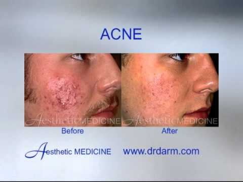 Dr. Darm Before and After - Skin Problems Acne