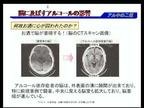 アルコールの飲み過ぎが「脳の神経細胞」に与える …