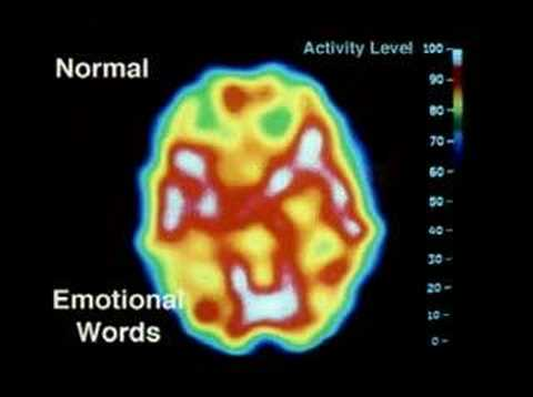 psychopath mri - general psychology - YouTube