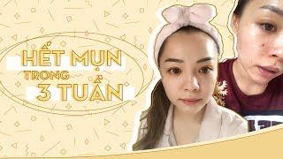 Skincare Buổi Tối Cho Da Mụn ♡ Night Skincare Routine For Acne Prone Skin ♡ TrinhPham