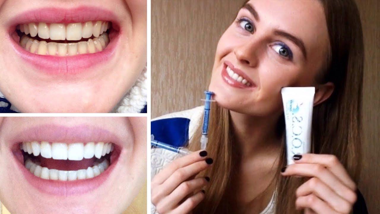 Как сделать зубы белыми в домашних условиях без вреда