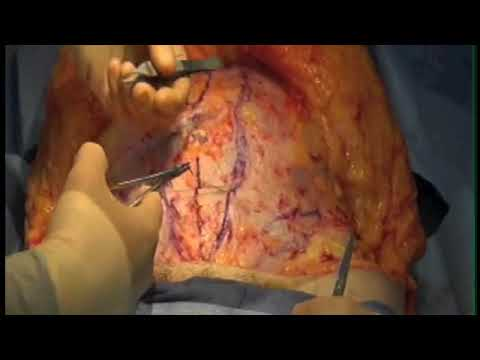 tummy tuck (abdominoplasty) operation.  Live Utah plastic surgery video