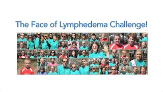The Face of Lymphedema Challenge!