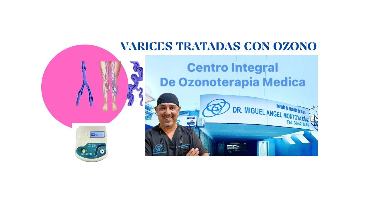 El embarazo varikoz que hacer