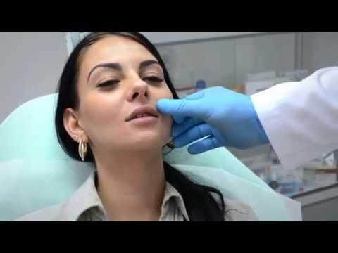 Увеличение губ.Пластический хирург Сергей Козарь