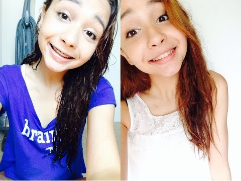 My braces experience/before and after♡