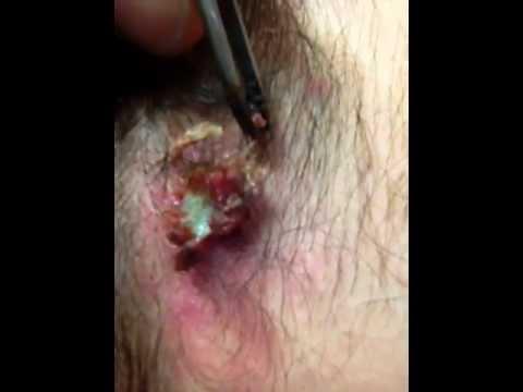 Ingrown Hair Cyst Big Pimple Youtube
