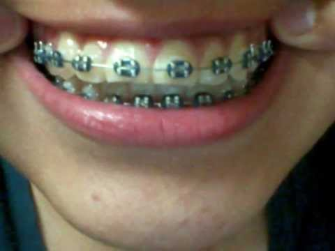 Braces Before After Thru