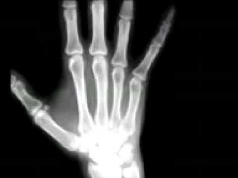 X-ray.3gp video