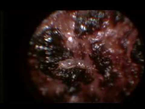Ear Mite with Video otoscope 