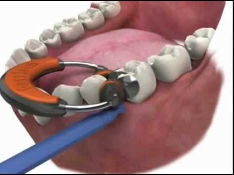 Dental Matrix Ring