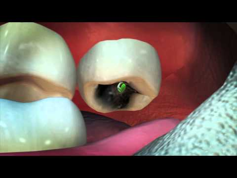 Disgusting! Dentist finds guava sprout growing in man s cavity