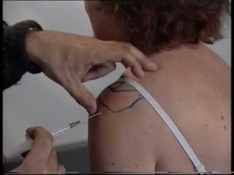 Injections of The Shoulder