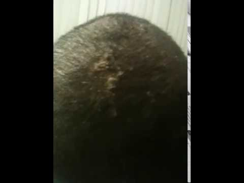 Acne on the head - Embarrassing and Pain