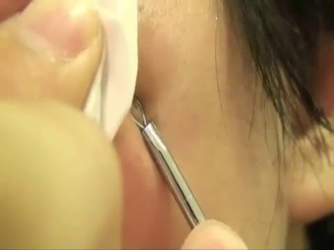 HOW TO: Romove Blackhead with a Blemish Extractor & Treatment for Scars