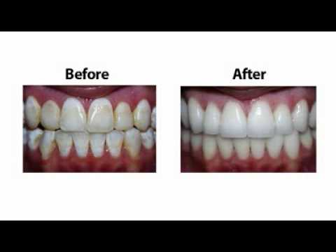 Dr. Harris Explains Porcelain Dental Veneers, Prepless Veneers, DURAthin Veneers