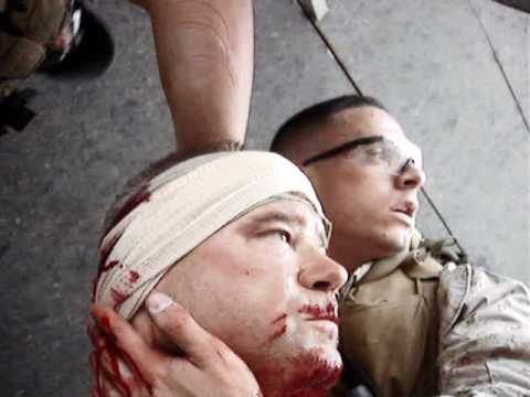 Blackwater contractor injured in Baghdad - Graphic