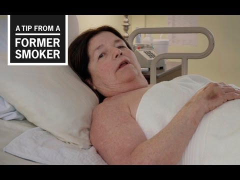CDC: Tips from Former Smokers - Suzy's Ad
