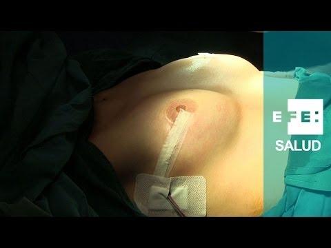 Mastectomía preventiva y reconstrucción mamaria de Beatriz
