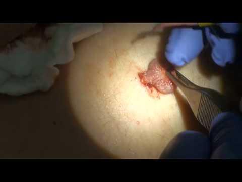 Фиброма (кожи, матки, молочной железы и других органов ...