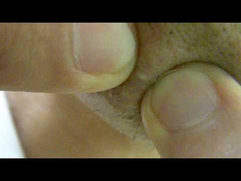 , ingrown hair