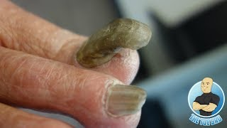 RAM'S HORN 4 YEARS WITHOUT BEING CUT!!!  EXTREME TOENAIL CUTTING OF A THICK NAIL