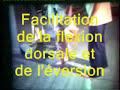 Hémiplégie facilitation de la dorsiflexion et de l'éversion