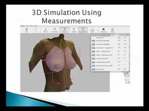 Improving Results of Breast Augmentation Mammaplasty Using the AxisThree 3D Scanner