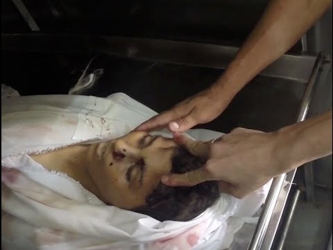 Ataque en Gaza a un colegio de la UNRWA.24 julio 2014