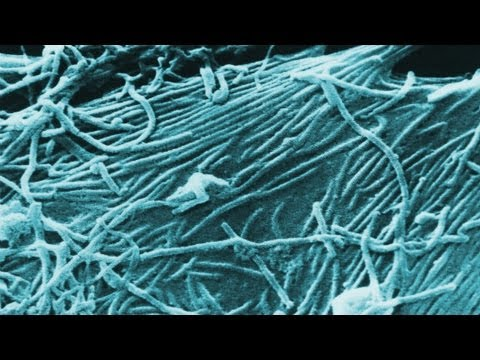 How Ebola virus spreads