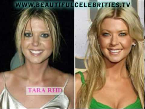 Botched Celebrity plastic surgery pictures before and ...