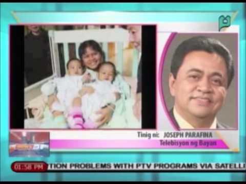 Dating conjoined twins na matagumpay na napaghiwalay sa Taiwan, iniharap sa media