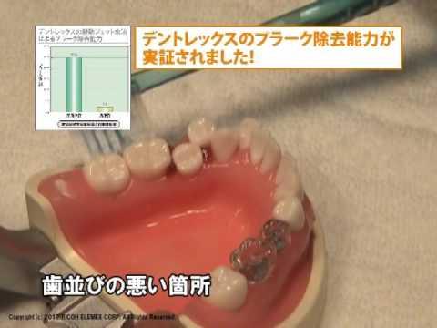 口腔洗浄器 DENTREX(デントレックス) 洗浄シーン