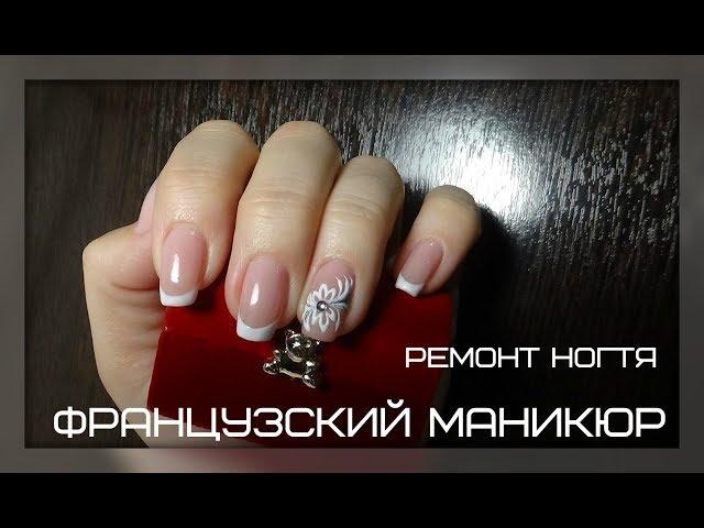 Ремонт ногтя, французский маникюр, форма квадрат, коррекция базой.