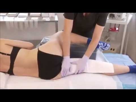 HK Surgical Post Operative Inner Thigh and Knee Liposuction