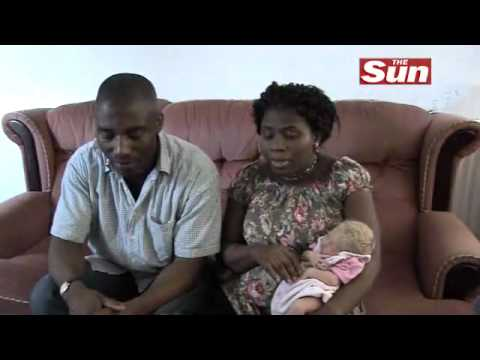 White baby born to black parents