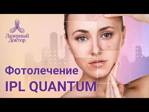 IPL Фотолечение Quantum (удаление пигментации и сосудов)