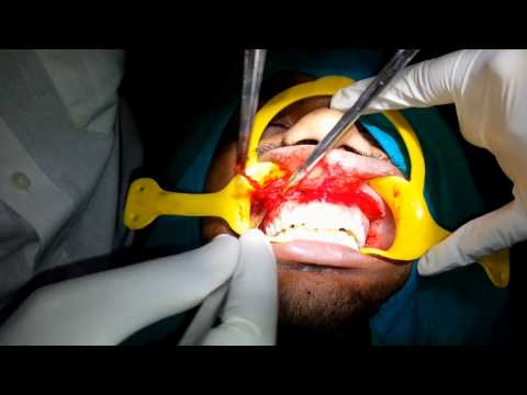 Lip repositioning for gummy smile corection..
