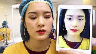 Biến Đổi Hotgirl Sau Khi Cắt Mí Mắt Mani Mini Deep 5D Tại Dr.Hải Lê