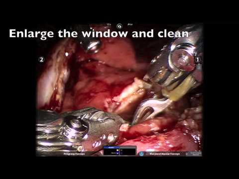 Robotic Surgery of Pancreatic Cyst