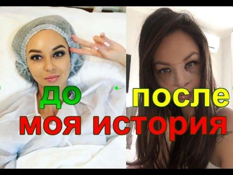 Ринопластика Моя История Читайте на моем блоге Lisova.tv ❤