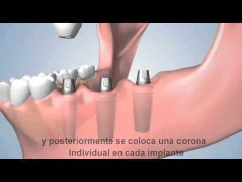 asl vs implants